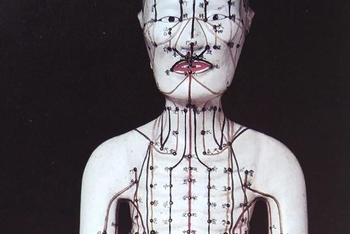 Akupunkturmännchen